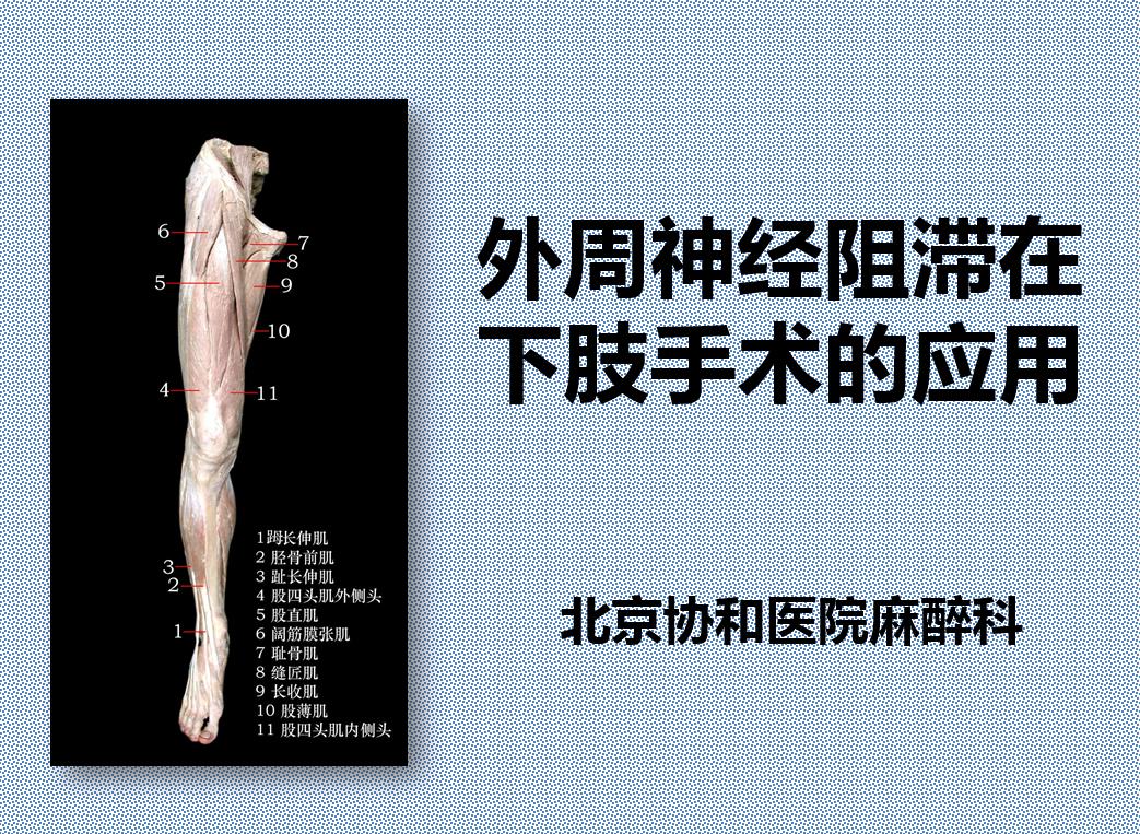 外周神经阻滞在下肢手术的应用